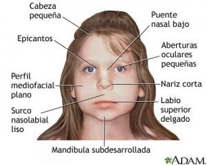 sindrome-alcoholico-fetal