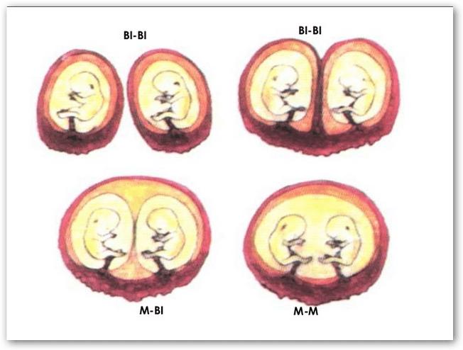 embarazo múltiple variedades monocigotos