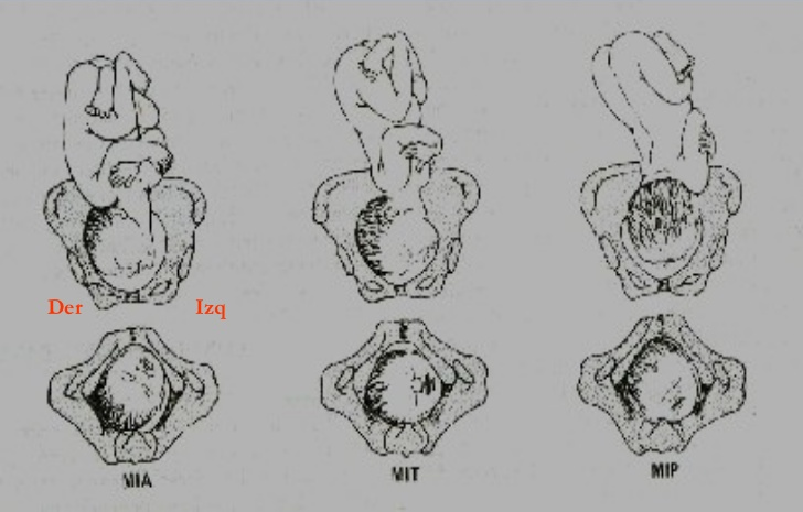 Estática fetal 12