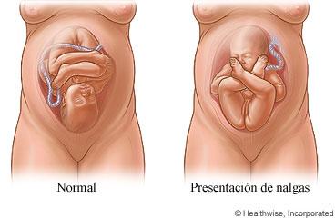 Estática fetal 8