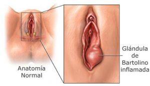 infeccion vaginal