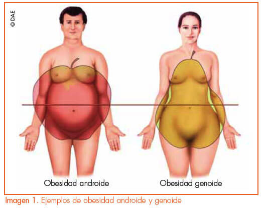 Obesidad-ginecoide-androide