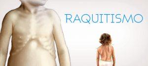 raquitismo-6