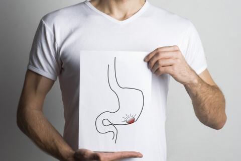 neoplasias malignas del estómago