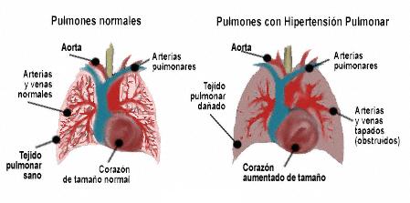 fisiopatología de la hipertensión pulmonar