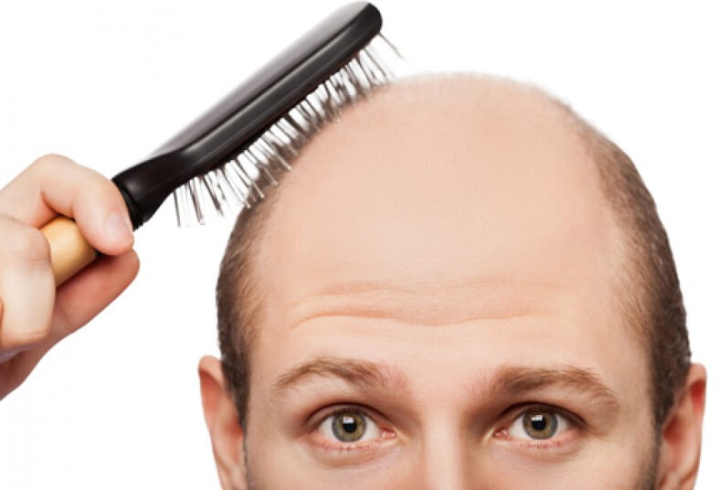 Tratamientos para la caída del cabello