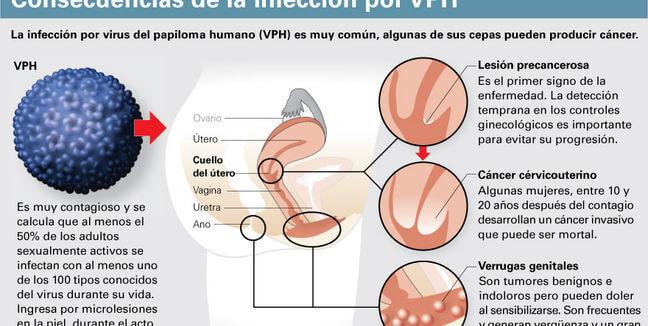 VPH y cáncer de cuello uterino