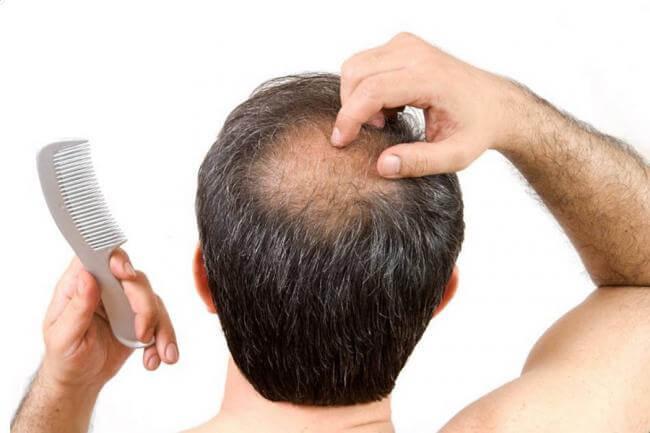 Por qu se cae el cabello causas m s comunes - En que meses se cae mas el pelo ...