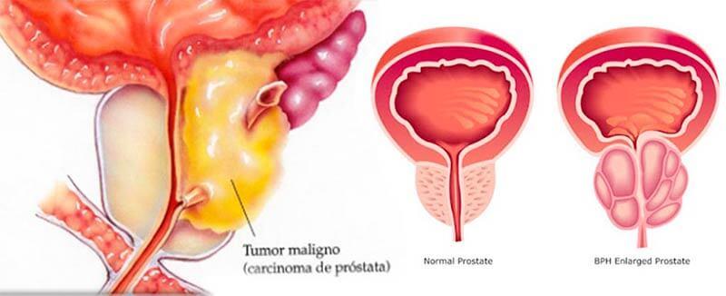 Cómo se observa el cáncer prostático