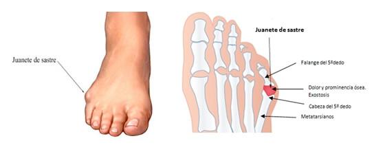 Juanete dorsal