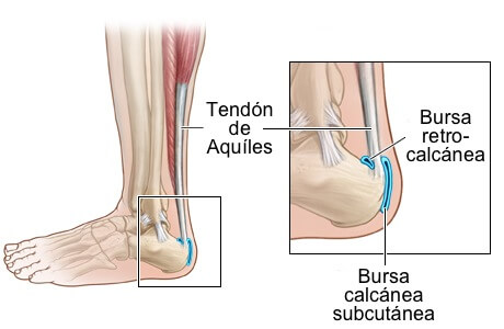 Bursitis en pie