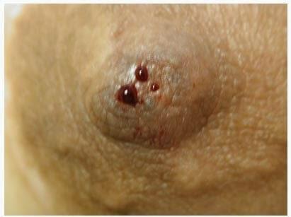 Telorragia, síntomas del cáncer de seno