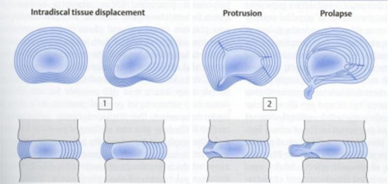 períodos de las enfermedades del disco intervertebral