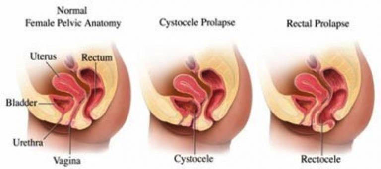 Prolapsos genitales