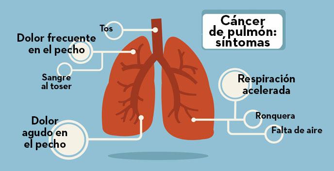 Síntomas del cáncer pulmonar