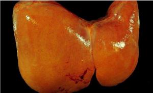 Esteatosis hepática alcohólica