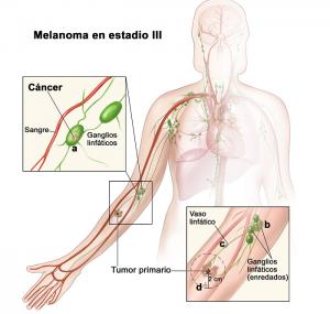 Etapa III del melanoma