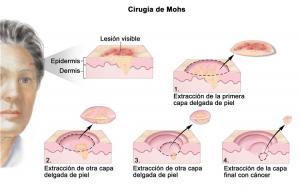 Cirugía de Mohs como tratamiento del carcinoma de piel