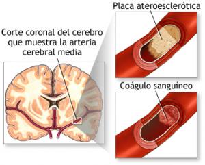 Causas del ECV Isquémico