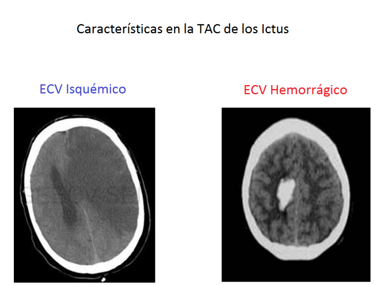 Imagen de una TAC en casos de Ictus
