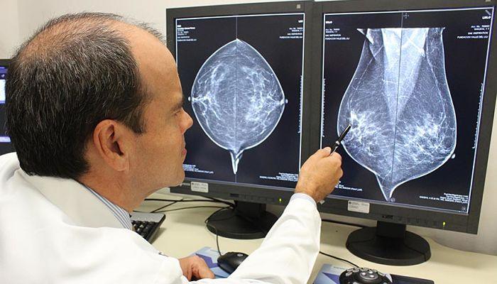 causas de dolor mamario