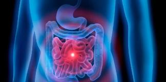 Tumores del intestino delgado