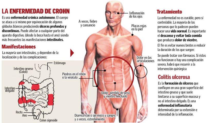 Enfermedad de Crohn como factor de riesgo de tumores intestinales