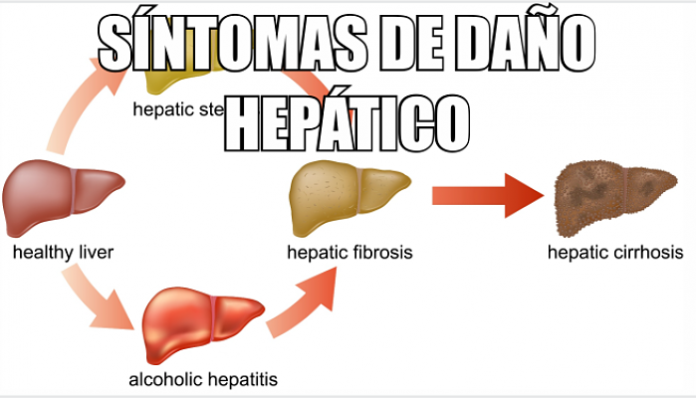 hepatitis y sus tipos