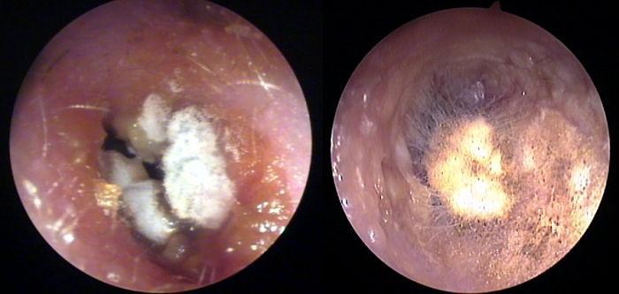 infecciones de los oidos por hongos