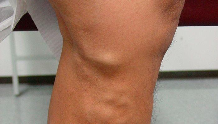 tipos de trombosis