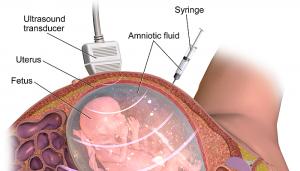 para que realizar amniocentesis