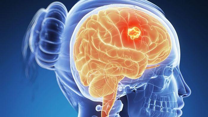 tumor en el cerebro